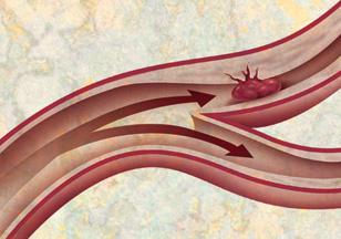 RFS - Stroke - blood vessel enlargement